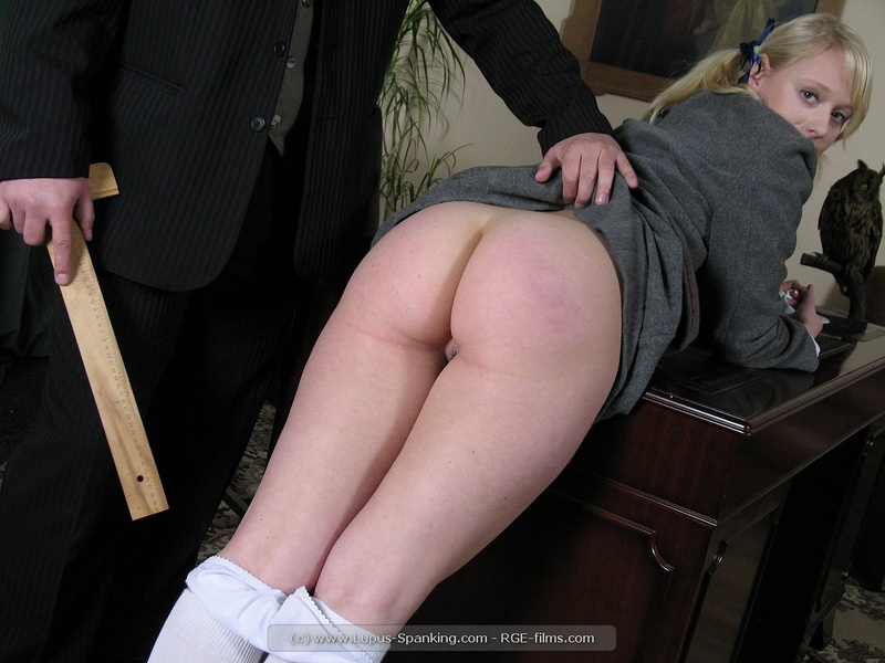 Lupus picture spank seen